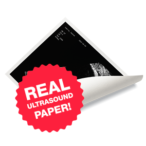 One real Ultrasound paper photo, printed and mailed