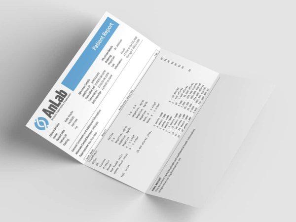 Pregnancy results paper folded mockup